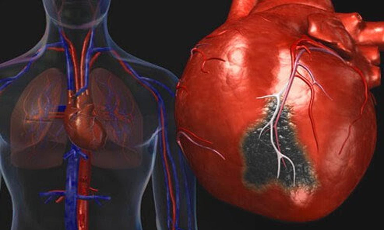 radial artery coronary graft